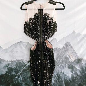 tobi lace dress